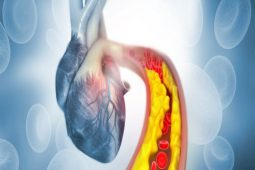 Cardiovascular Atherosclerosis: Prediction, Prevention and Management – Live Streaming CME Event